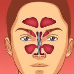Deviazione del setto nasale